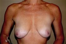 Breast Augmentation Before Photo by Joseph Woods, MD; Atlanta, GA - Case 23030