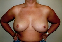 Breast Reduction After Photo by Joseph Woods, MD; Atlanta, GA - Case 23031