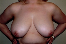 Breast Reduction Before Photo by Joseph Woods, MD; Atlanta, GA - Case 23031