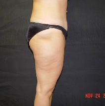 Tummy Tuck After Photo by James Fernau, MD, FACS; Pittsburgh, PA - Case 6790