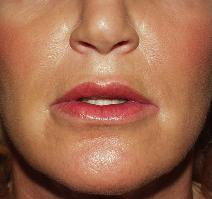 Dermal Fillers After Photo by James Fernau, MD, FACS; Pittsburgh, PA - Case 6795