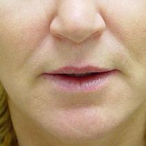 Dermal Fillers Before Photo by James Fernau, MD, FACS; Pittsburgh, PA - Case 6795
