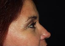 Eyelid Surgery After Photo by James Fernau, MD, FACS; Pittsburgh, PA - Case 6799