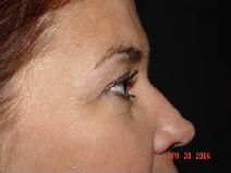 Eyelid Surgery Before Photo by James Fernau, MD, FACS; Pittsburgh, PA - Case 6799