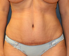 Tummy Tuck After Photo by Steve Laverson, MD; San Diego, CA - Case 34300