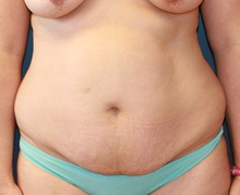 Tummy Tuck Before Photo by Steve Laverson, MD; San Diego, CA - Case 34300