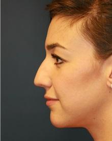 Rhinoplasty Before Photo by Steve Laverson, MD; San Diego, CA - Case 34302