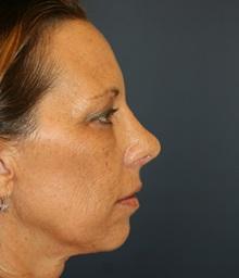 Rhinoplasty After Photo by Steve Laverson, MD; San Diego, CA - Case 34303