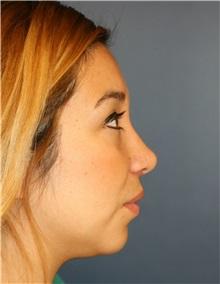 Rhinoplasty After Photo by Steve Laverson, MD; San Diego, CA - Case 34306