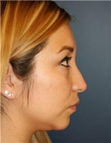 Rhinoplasty Before Photo by Steve Laverson, MD; San Diego, CA - Case 34306