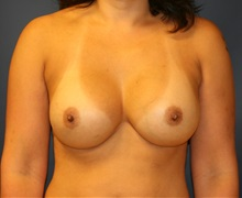 Breast Augmentation After Photo by Steve Laverson, MD; San Diego, CA - Case 34312