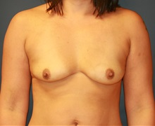 Breast Augmentation Before Photo by Steve Laverson, MD; San Diego, CA - Case 34312