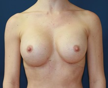 Breast Augmentation After Photo by Steve Laverson, MD; San Diego, CA - Case 34522