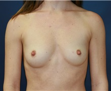 Breast Augmentation Before Photo by Steve Laverson, MD; San Diego, CA - Case 34522
