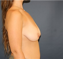 Breast Lift Before Photo by Steve Laverson, MD; San Diego, CA - Case 34960