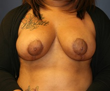 Breast Reduction After Photo by Steve Laverson, MD; San Diego, CA - Case 35158