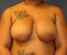 Breast Reduction Before Photo by Steve Laverson, MD; San Diego, CA - Case 35158