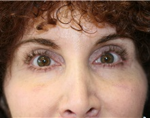 Eyelid Surgery After Photo by Steve Laverson, MD; San Diego, CA - Case 35159