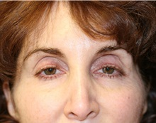 Eyelid Surgery Before Photo by Steve Laverson, MD; San Diego, CA - Case 35159