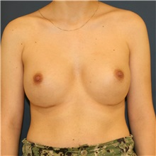 Breast Augmentation After Photo by Steve Laverson, MD; San Diego, CA - Case 36640