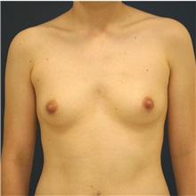 Breast Augmentation Before Photo by Steve Laverson, MD; San Diego, CA - Case 36640
