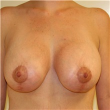 Breast Lift After Photo by Steve Laverson, MD; San Diego, CA - Case 36726