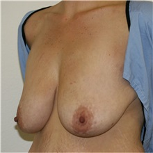 Breast Lift Before Photo by Steve Laverson, MD; San Diego, CA - Case 36726
