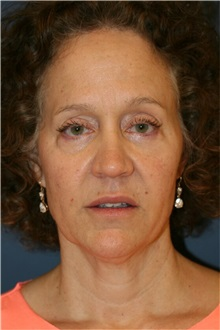 Facelift Before Photo by Steve Laverson, MD; San Diego, CA - Case 36732