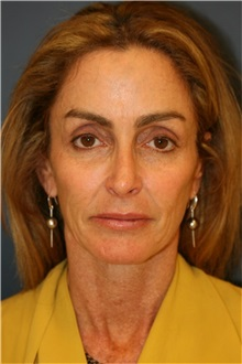 Facelift Before Photo by Steve Laverson, MD; San Diego, CA - Case 36733
