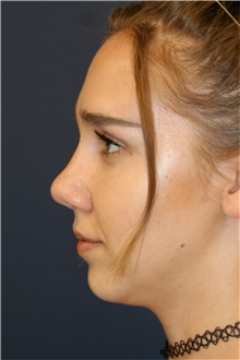 Rhinoplasty After Photo by Steve Laverson, MD; San Diego, CA - Case 36810
