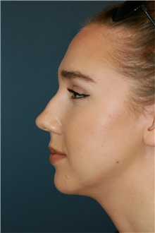 Rhinoplasty Before Photo by Steve Laverson, MD; San Diego, CA - Case 36810