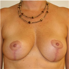 Breast Lift After Photo by Steve Laverson, MD; San Diego, CA - Case 36880