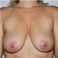 Breast Lift Before Photo by Steve Laverson, MD; San Diego, CA - Case 36880