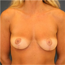 Breast Lift After Photo by Steve Laverson, MD; San Diego, CA - Case 36881