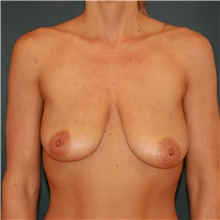 Breast Lift Before Photo by Steve Laverson, MD; San Diego, CA - Case 36881