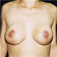 Breast Lift After Photo by Steve Laverson, MD; San Diego, CA - Case 36882