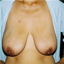Breast Lift Before Photo by Steve Laverson, MD; San Diego, CA - Case 36882