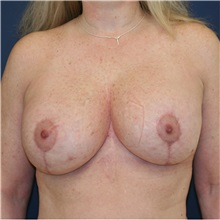 Breast Lift After Photo by Steve Laverson, MD; San Diego, CA - Case 36883