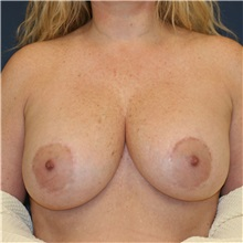 Breast Lift Before Photo by Steve Laverson, MD; San Diego, CA - Case 36883