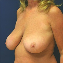 Breast Lift Before Photo by Steve Laverson, MD; San Diego, CA - Case 36885