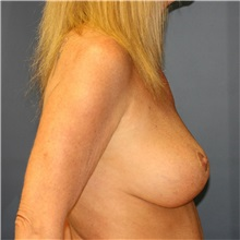 Breast Lift After Photo by Steve Laverson, MD; San Diego, CA - Case 36885