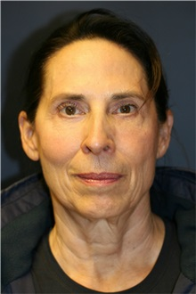 Facelift Before Photo by Steve Laverson, MD; San Diego, CA - Case 37447