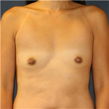 Breast Augmentation Before Photo by Steve Laverson, MD; San Diego, CA - Case 37503