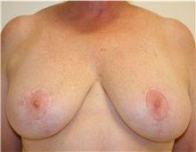 Breast Reduction After Photo by Steve Laverson, MD; San Diego, CA - Case 37746