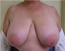 Breast Reduction Before Photo by Steve Laverson, MD; San Diego, CA - Case 37746