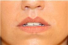 Lip Augmentation / Enhancement After Photo by Steve Laverson, MD; San Diego, CA - Case 37922
