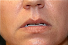 Lip Augmentation / Enhancement Before Photo by Steve Laverson, MD; San Diego, CA - Case 37922