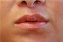 Lip Augmentation / Enhancement After Photo by Steve Laverson, MD; San Diego, CA - Case 37982