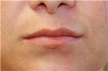 Lip Augmentation / Enhancement Before Photo by Steve Laverson, MD; San Diego, CA - Case 37982