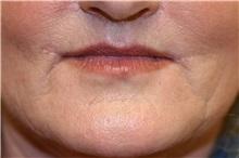 Lip Augmentation / Enhancement After Photo by Steve Laverson, MD; San Diego, CA - Case 37988
